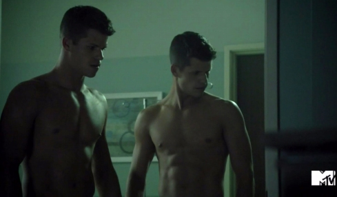 The Carver Twins in Teen Wolf Episode 3.10